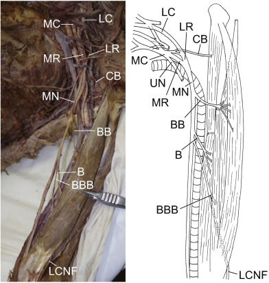 A Novel Classification Of Musculocutaneous Nerve Variations The