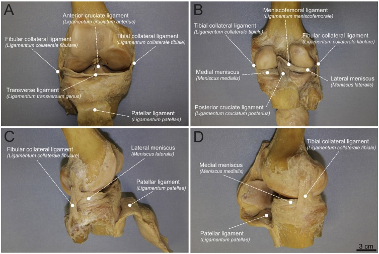 Interprofessional approach for teaching functional knee joint ...