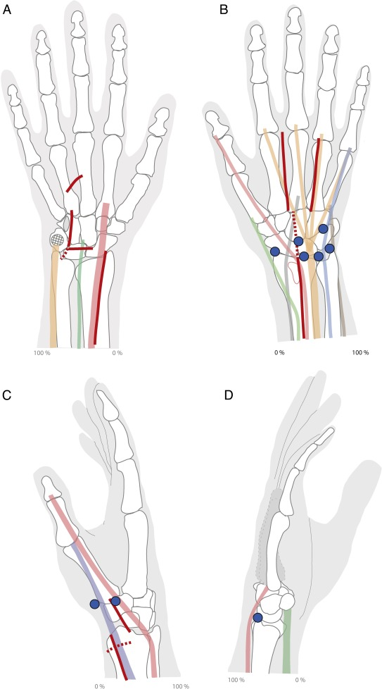 Cutaneous Innervation Of The Distal Forearm And Hand Minimizing