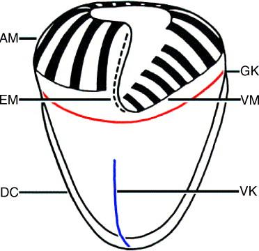 Evolution of ciliary patterns in the Oligotrichida