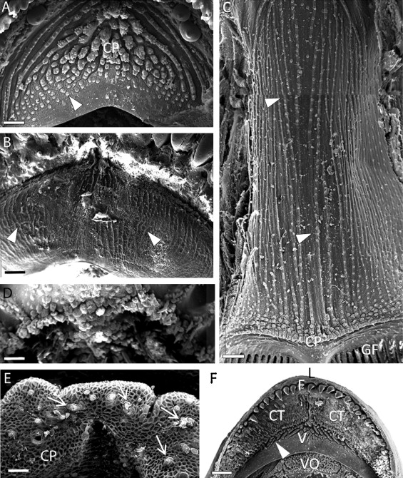 SEM study of the oral cavity of members of the Kyphosidae and