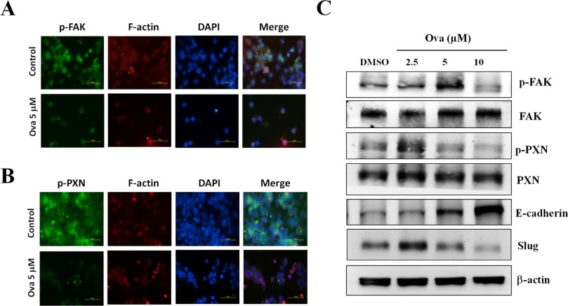 Ovatodiolide suppresses nasopharyngeal cancer by targeting stem cell
