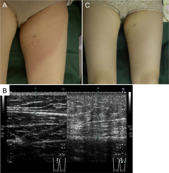 Prevalence and clinical features of lymphedema in patients