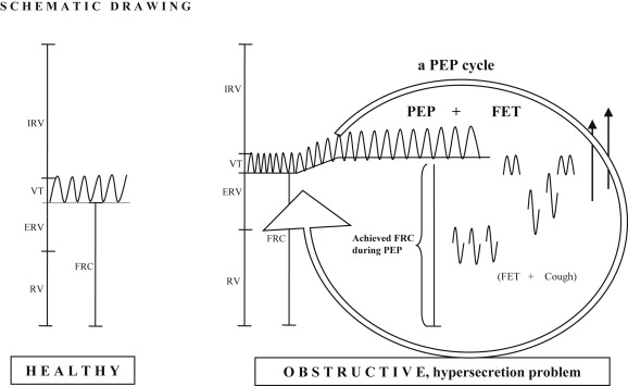 Positive expiratory pressure – Common clinical applications and