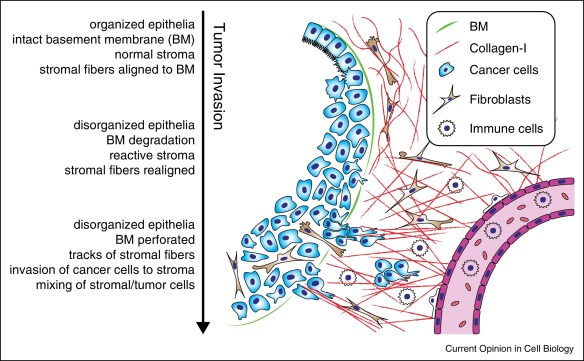 Modes of cancer cell invasion and the role of the