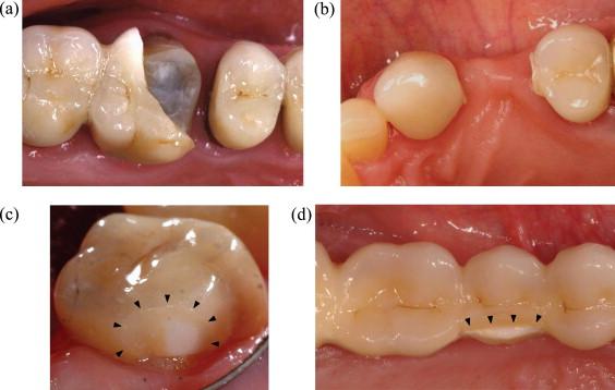 Overview Damage Resistance Of Graded Ceramic Restorative Materials Sciencedirect