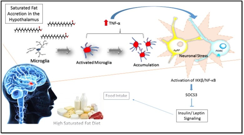 high fat diet hypothalamic inflammation