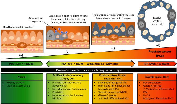 LOD prostatitis