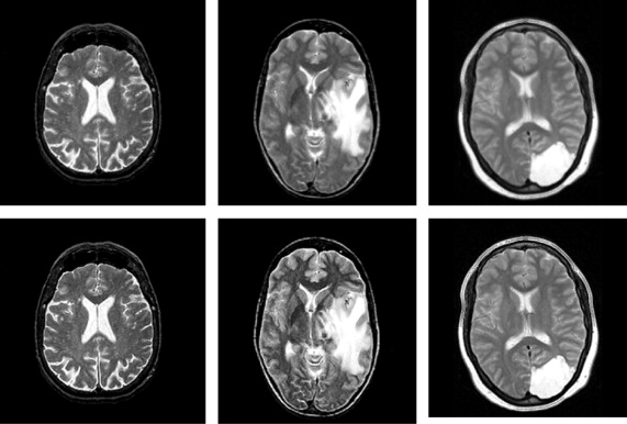 Computer aided diagnosis of human brain tumor through mri a survey sample of human brain mri from before and after preprocessing stage ccuart Choice Image