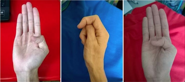 Gesture recognition: A review focusing on sign language in a