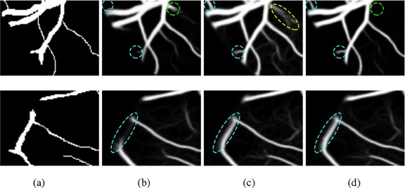 Retinal vessel segmentation based on Fully Convolutional Neural
