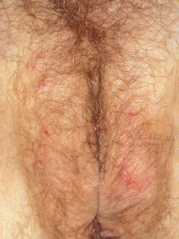 Skin Diseases Affecting The Vulva Sciencedirect