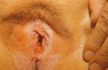dermovate lichen sclerosus
