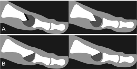Youngswick–Austin versus distal oblique osteotomy for the treatment