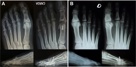 Youngswick–Austin versus distal oblique osteotomy for the