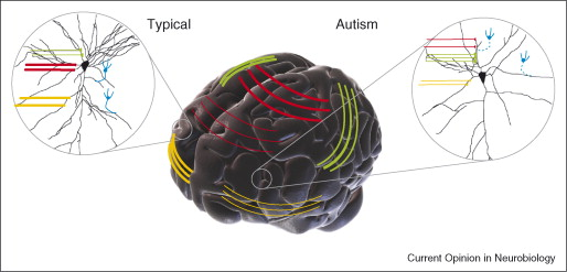 Autism spectrum disorders: developmental disconnection syndromes ...