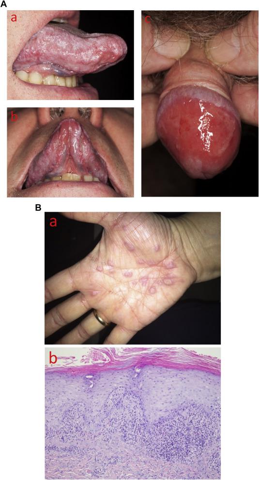 lichen ruber mucosae