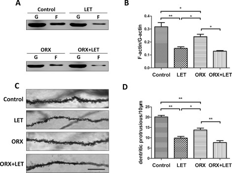 Orchiectomy and letrozole differentially regulate synaptic