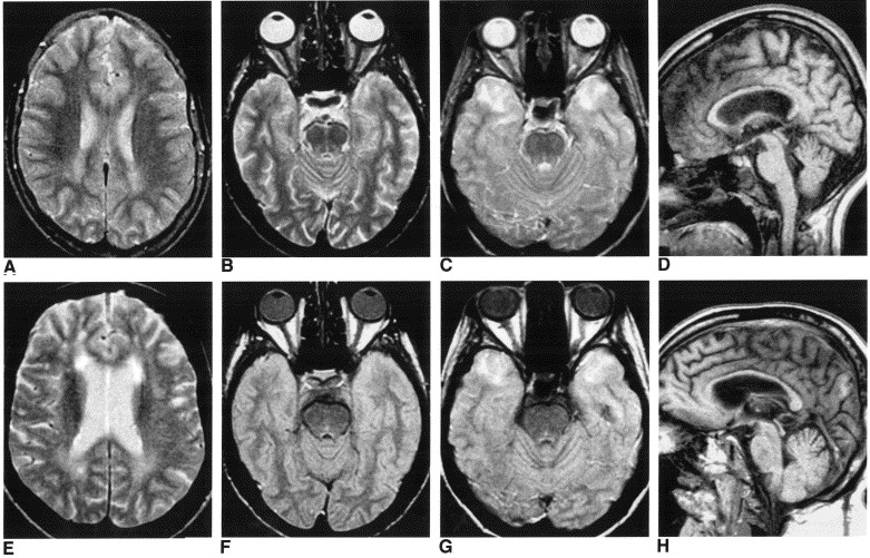 Brain MRI features of congenital- and adult-form myotonic dystrophy type 1:  case-control study - ScienceDirect