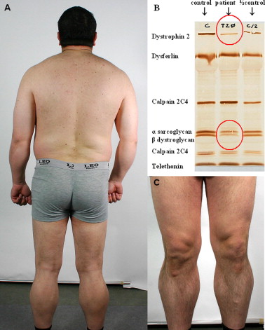 Becker muscular dystrophy with widespread muscle hypertrophy and a ...