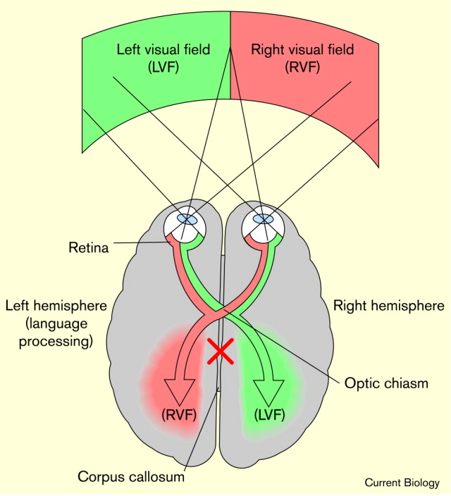 Hemispheric Asymmetries A Brain In Two Minds Sciencedirect