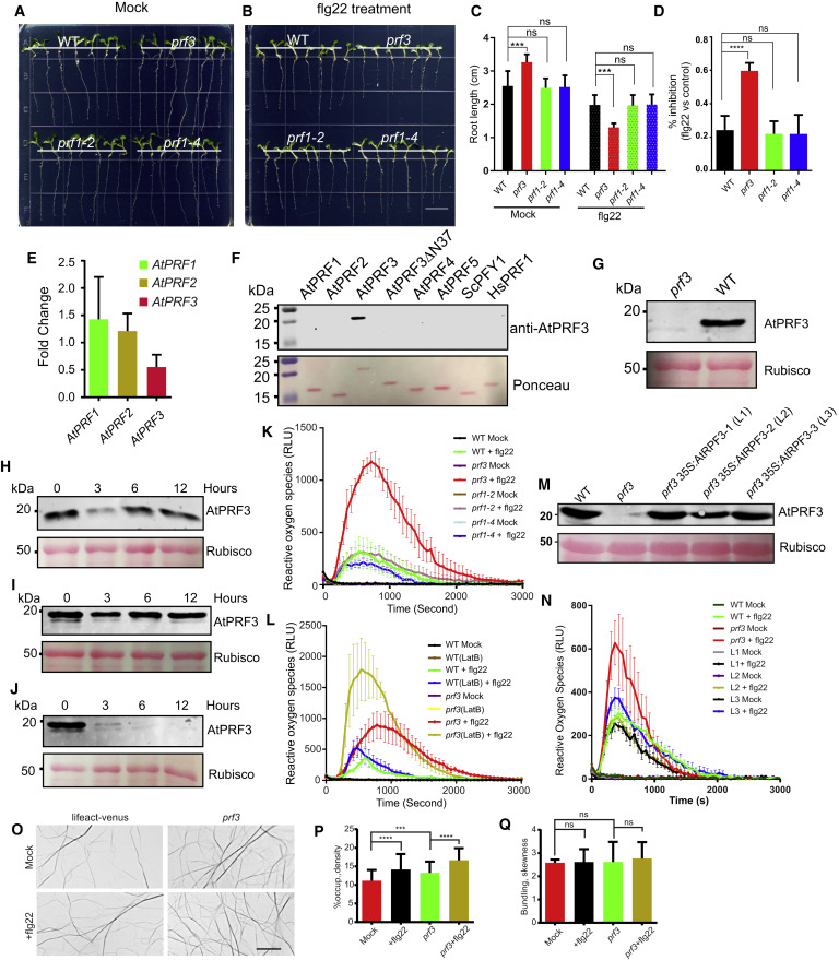Profilin Negatively Regulates Formin-Mediated Actin Assembly
