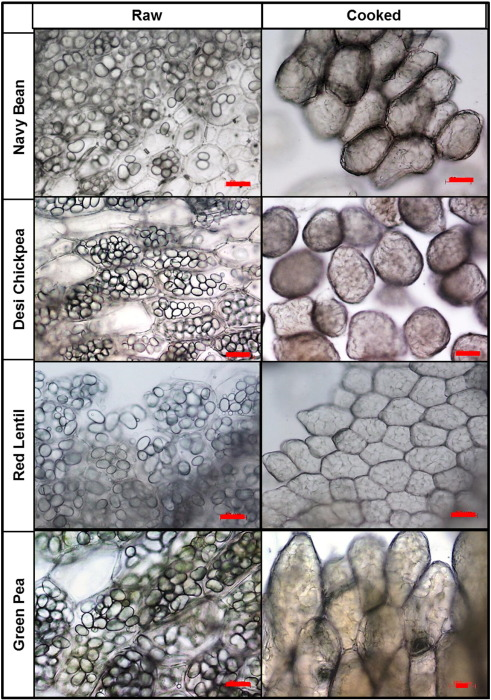 Structural and functional characteristics of dietary fibre