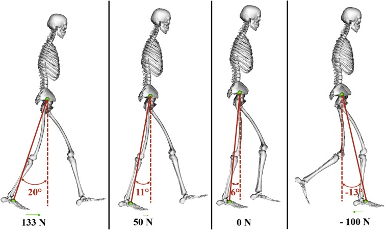 Paretic propulsion as a measure of walking performance and