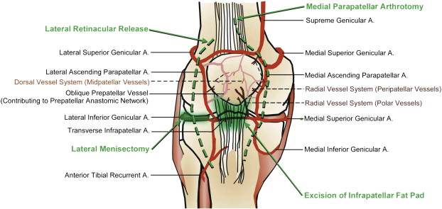 Vascular Anatomy Of The Patella Implications For Total Knee