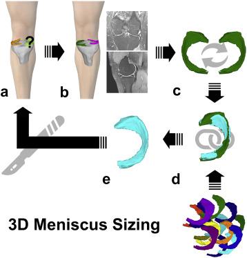 Biomechanics of Fractures   Musculoskeletal Key