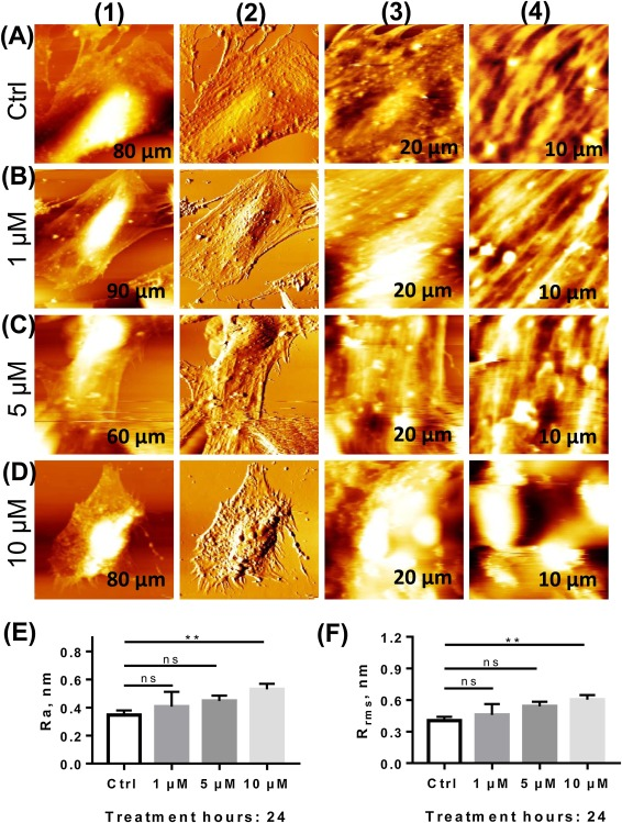 Silver Nanoparticles Induce Cell Death Of Colon Cancer Cells Through Impairing Cytoskeleton And Membrane Nanostructure Sciencedirect