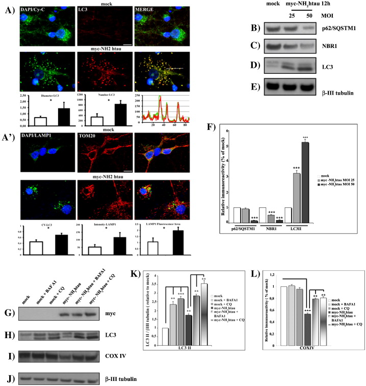 AD-linked, toxic NH2 human tau affects the quality control