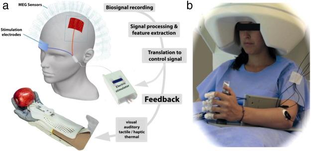Brain–machine interfaces in neurorehabilitation of stroke