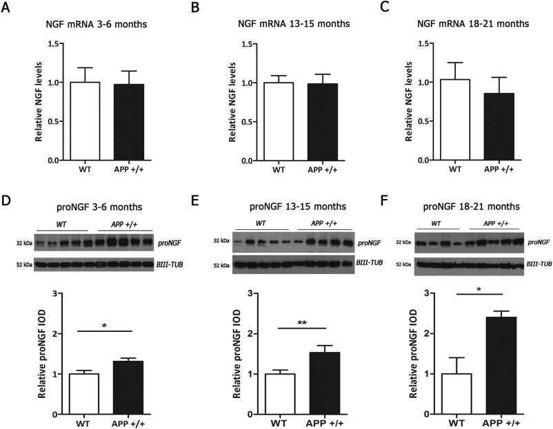 Differential deregulation of NGF and BDNF neurotrophins in a