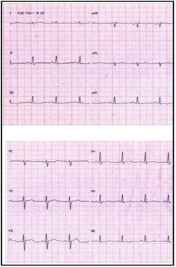 Bidirectional Ventricular Tachycardia A Hallmark Of Catecholaminergic Polymorphic Ventricular Tachycardia Sciencedirect