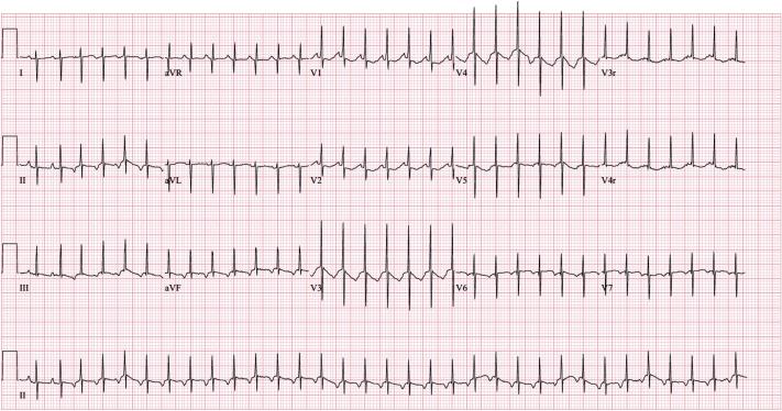 Neonatal Supraventricular Tachycardia Sciencedirect