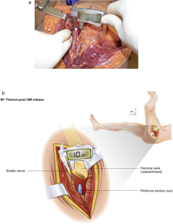 Position of the sciatic nerve and effect of gluteus maximus release ...