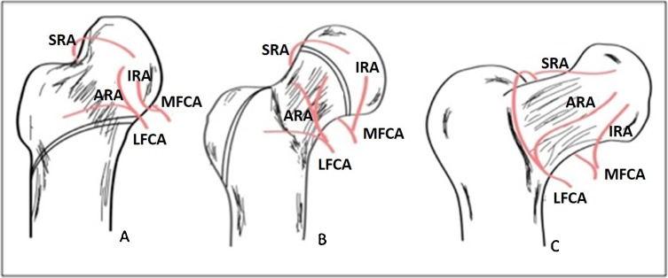 Pediatric proximal femur fractures - ScienceDirect