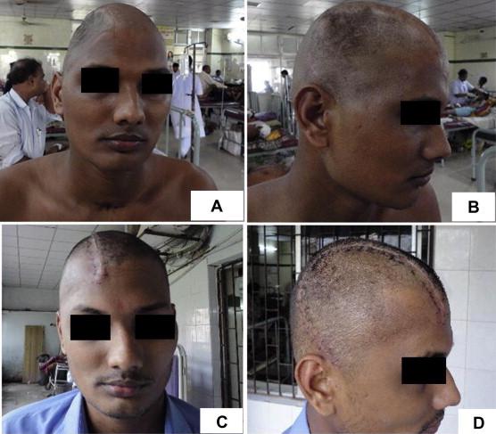 cranioplasty after decompressive craniectomy sciencedirect