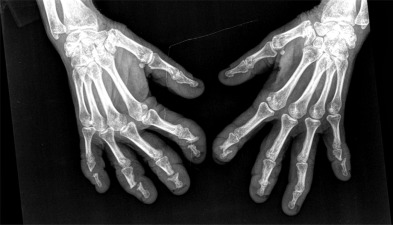 Telescopic fingers The severe form of arthritis mutilans