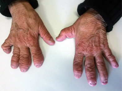 Telescopic fingers The severe form of arthritis mutilans