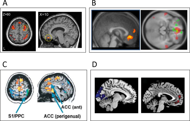 Brain circuits implicated in psychogenic paralysis in