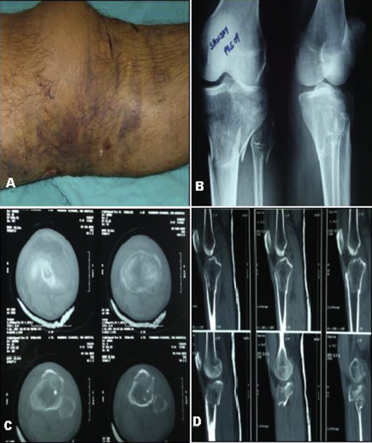 Role of Joshi\'s external stabilization system with percutaneous ...