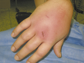 Clenched Fist Injury Complicated By Septic Arthritis And Osteomyelitis Treated With Negative Pressure Wound Therapy One Case Report Sciencedirect