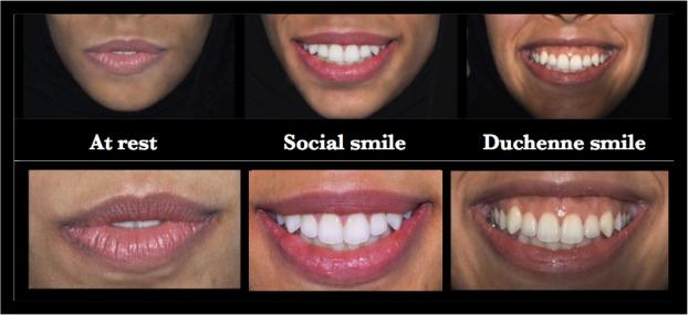 Lip repositioning: An alternative to invasive surgery a 4