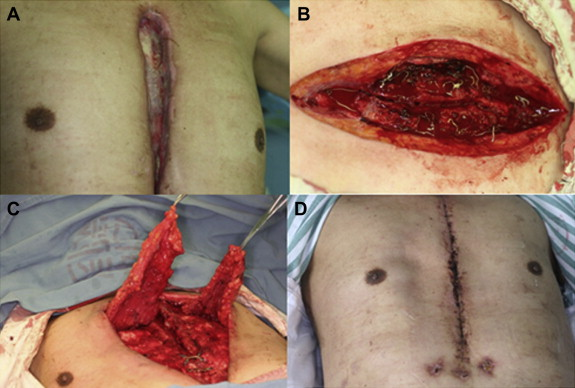 Treatment of sternal wound infections after open-heart surgery ...
