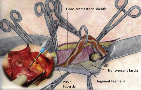 All In One Mesh Hernioplasty A New Procedure For Primary Inguinal