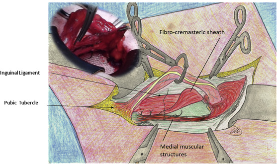 """All-in-one mesh"""" hernioplasty: A new procedure for primary inguinal ..."""