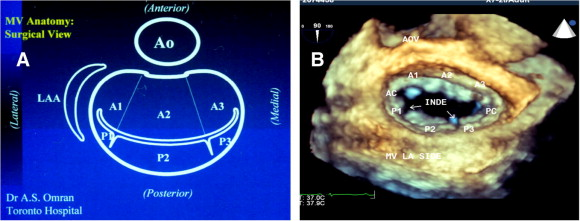 Echocardiography Of The Mitral Valve Sciencedirect