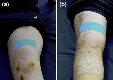 Kinesio taping as a treatment method in the acute phase of